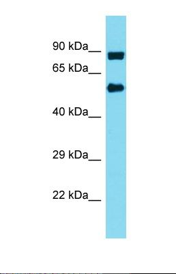 Western blot of Human MDA-MB-435S. INTS10 antibody dilution 1.0 ug/ml.  This image was taken for the unconjugated form of this product. Other forms have not been tested.