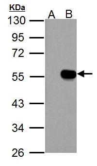 IP6K1 antibody detects IHPK1 protein by Western blot analysis. A. 30 ug 293T whole cell lysate/extract. B. 30 ug whole cell lysate/extract of human IHPK1-transfected 293T cells. 10 % SDS-PAGE. IP6K1 antibody dilution:1:5000