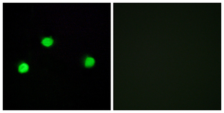 Immunofluorescence analysis of COS7 cells, using IP6K2 Antibody. The picture on the right is blocked with the synthesized peptide.