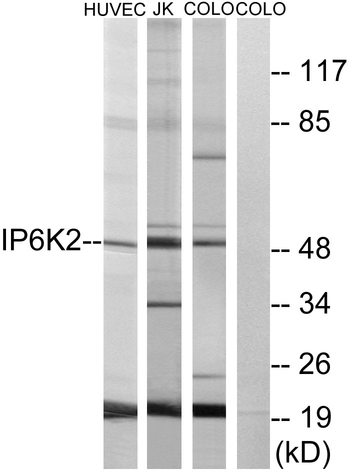 Western blot analysis of lysates from HUVEC, COLO, and Jurkat cells, using IP6K2 Antibody. The lane on the right is blocked with the synthesized peptide.