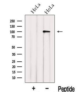 IPO13 / LGL2 Antibody - Western blot analysis of extracts of HeLa cells using IPO13 antibody. The lane on the left was treated with blocking peptide.