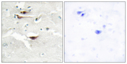 Immunohistochemistry analysis of paraffin-embedded human brain tissue, using IPPK Antibody. The picture on the right is blocked with the synthesized peptide.