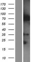 IQCE Protein - Western validation with an anti-DDK antibody * L: Control HEK293 lysate R: Over-expression lysate