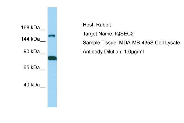 IQSEC2 Antibody -  This image was taken for the unconjugated form of this product. Other forms have not been tested.