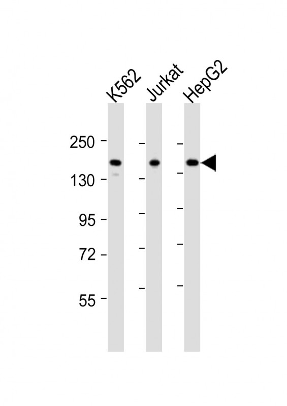 IQSEC2 Antibody - All lanes: Anti-IQSEC2 Antibody (Center) at 1:2000 dilution. Lane 1: K562 whole cell lysates. Lane 2: Jurkat whole cell lysates. Lane 3: HepG2 whole cell lysates Lysates/proteins at 20 ug per lane. Secondary Goat Anti-Rabbit IgG, (H+L), Peroxidase conjugated at 1:10000 dilution. Predicted band size: 162 kDa. Blocking/Dilution buffer: 5% NFDM/TBST.