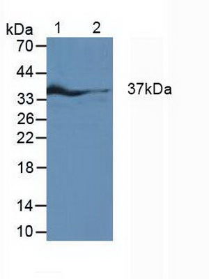 Western Blot; Sample: Lane1: Rat Fetal Rat Tissue; Lane2: Rat Heart Tissue; Lane3: Rat Placenta Tissue.