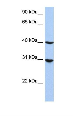 HepG2 cell lysate. Antibody concentration: 1.2 ug/ml. Gel concentration: 12%.  This image was taken for the unconjugated form of this product. Other forms have not been tested.