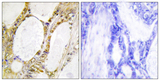 Immunohistochemistry analysis of paraffin-embedded human colon carcinoma tissue, using IRF2 Antibody. The picture on the right is blocked with the synthesized peptide.