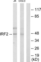 Western blot analysis of lysates from Jurkat and COLO205 cells, using IRF2 Antibody. The lane on the right is blocked with the synthesized peptide.