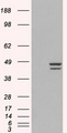 HEK293 overexpressing  IRF2 (RC202102) and probed (mock transfection in first lane)