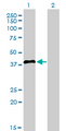 Western blot of IRF2 expression in transfected 293T cell line by IRF2 monoclonal antibody (M02), clone 3B5.