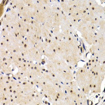 Immunohistochemistry of paraffin-embedded human stomach cancer tissue.