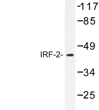 Western blot of IRF-2 (K129) pAb in extracts from Jurkat cells.