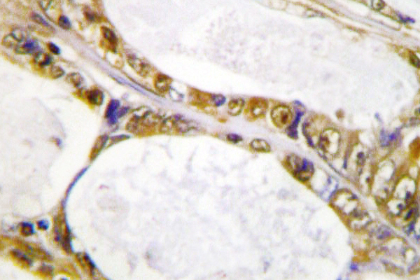 IHC of IRF-2 (K129) pAb in paraffin-embedded human colon carcinoma tissue.