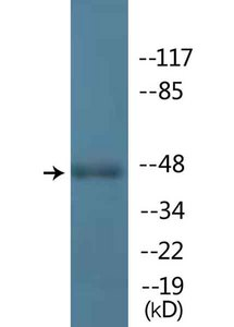 Anti-IRF3 Antibody (phospho-Ser396) antibody at 1:500 dilution with Jurkat cells treated with 200 ng/ml of EGF for 30 minutes.