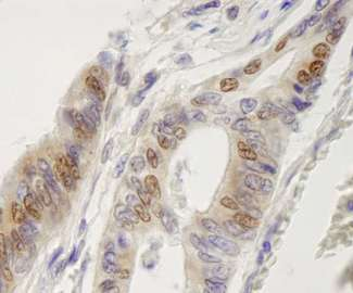 Detection of Human IRF3 by Immunohistochemistry. Sample: FFPE section of human colon adenocarcinoma. Antibody: Affinity purified rabbit anti-IRF3 used at a dilution of 1:250.