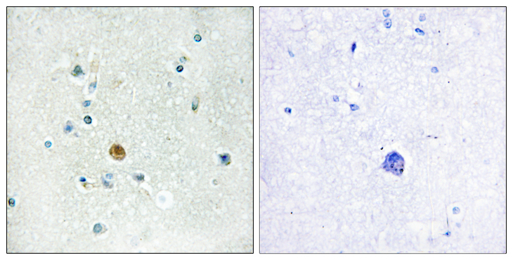 Immunohistochemistry analysis of paraffin-embedded human brain tissue, using IRF3 Antibody. The picture on the right is blocked with the synthesized peptide.