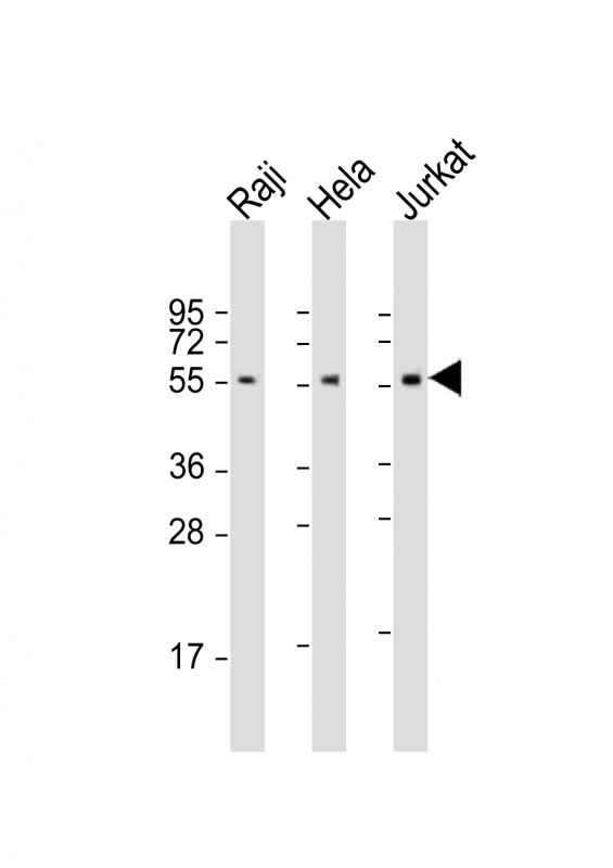 All lanes: Anti-IRF3 Antibody (N-Term) at 1:2000 dilution. Lane 1: Raji whole cell lysate. Lane 2: HeLa whole cell lysate. Lane 3: Jurkat whole cell lysate Lysates/proteins at 20 ug per lane. Secondary Goat Anti-Rabbit IgG, (H+L), Peroxidase conjugated at 1:10000 dilution. Predicted band size: 47 kDa. Blocking/Dilution buffer: 5% NFDM/TBST.