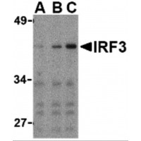 Western blot analysis of IRF3 in Ramos whole cell lysate with IRF3 antibody at (A) 1, (B) 2, and (C) 4 µg/mL.