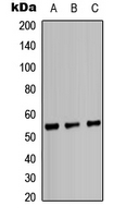 Western blot analysis of IRF3 expression in HeLa (A); HepG2 (B); mouse heart (C) whole cell lysates.