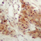 Immunohistochemical analysis of IRF3 (pS385) staining in human breast cancer formalin fixed paraffin embedded tissue section. The section was pre-treated using heat mediated antigen retrieval with sodium citrate buffer (pH 6.0). The section was then incubated with the antibody at room temperature and detected using an HRP polymer system. DAB was used as the chromogen. The section was then counterstained with hematoxylin and mounted with DPX.