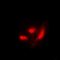 Immunofluorescent analysis of IRF3 (pS385) staining in HeLa cells. Formalin-fixed cells were permeabilized with 0.1% Triton X-100 in TBS for 5-10 minutes and blocked with 3% BSA-PBS for 30 minutes at room temperature. Cells were probed with the primary antibody in 3% BSA-PBS and incubated overnight at 4 deg C in a humidified chamber. Cells were washed with PBST and incubated with a DyLight 594-conjugated secondary antibody (red) in PBS at room temperature in the dark. DAPI was used to stain the cell nuclei (blue).