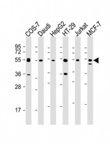 All lanes: Anti-IRF3 Antibody at 1:2000 dilution. Lane 1: COS-7 whole cell lysate. Lane 2: Daudi whole cell lysate. Lane 3: HepG2 whole cell lysate. Lane 4: HT-29 whole cell lysate. Lane 5: Jurkat whole cell lysate. Lane 6: MCF-7 whole cell lysate Lysates/proteins at 20 ug per lane. Secondary Goat Anti-mouse IgG, (H+L), Peroxidase conjugated at 1:10000 dilution. Predicted band size: 47 kDa. Blocking/Dilution buffer: 5% NFDM/TBST.