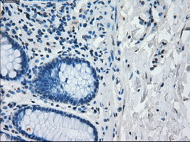 IHC of paraffin-embedded colon tissue using anti-IRF3 mouse monoclonal antibody. (Dilution 1:50).