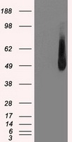 HEK293T cells were transfected with the pCMV6-ENTRY control (Left lane) or pCMV6-ENTRY IRF3 (Right lane) cDNA for 48 hrs and lysed. Equivalent amounts of cell lysates (5 ug per lane) were separated by SDS-PAGE and immunoblotted with anti-IRF3.