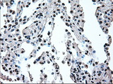 Immunohistochemical staining of paraffin-embedded lung tissue using anti-IRF3 mouse monoclonal antibody. (Dilution 1:50).