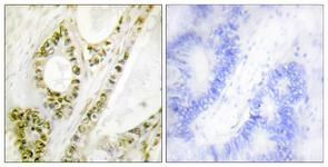 IHC of paraffin-embedded human colon carcinoma, using IRF-3 (Phospho-Ser385) Antibody. The sample on the right was incubated with synthetic peptide.