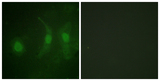 Immunofluorescence analysis of HeLa cells, using IRF-3 (Phospho-Ser385) Antibody. The picture on the right is blocked with the phospho peptide.