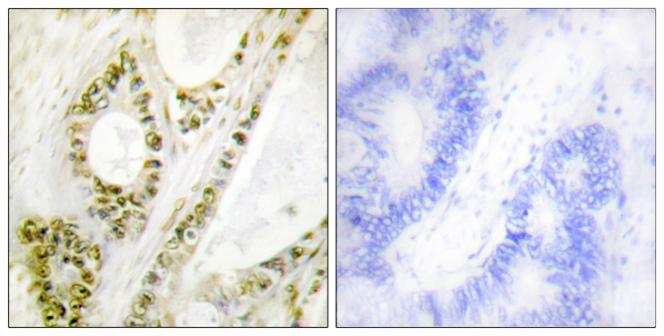 Immunohistochemistry analysis of paraffin-embedded human colon carcinoma, using IRF-3 (Phospho-Ser385) Antibody. The picture on the right is blocked with the phospho peptide.