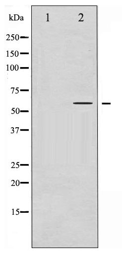 Western blot of IRF-3 phosphorylation expression in Insulin treated HT29 whole cell lysates,The lane on the left is treated with the antigen-specific peptide.