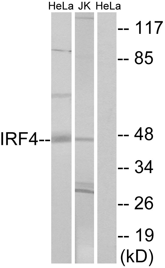 Western blot analysis of lysates from HeLa and Jurkat cells, using IRF4 Antibody. The lane on the right is blocked with the synthesized peptide.