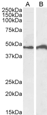 IRF4 antibody (0.5µg/ml) staining of Daudi (A) and Jurkat (B) cell lysate (35µg protein in RIPA buffer). Detected by chemiluminescence.