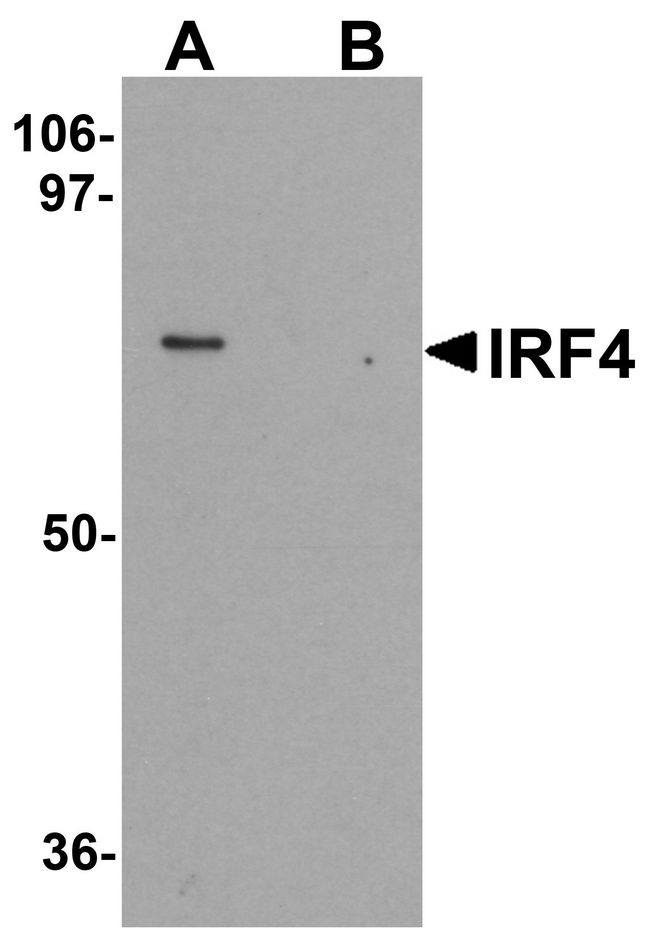 Western blot analysis of IRF4 in Jurkat cell lysate with IRF4 antibody at 1 ug/ml in (A) the absence and (B) the presence of blocking peptide.