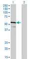 Western blot of IRF4 expression in transfected 293T cell line by IRF4 monoclonal antibody clone 2F2.