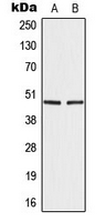Western blot analysis of IRF4 expression in A549 (A); Ramos (B) whole cell lysates.