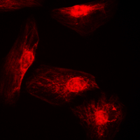 Immunofluorescent analysis of IRF4 staining in A549 cells. Formalin-fixed cells were permeabilized with 0.1% Triton X-100 in TBS for 5-10 minutes and blocked with 3% BSA-PBS for 30 minutes at room temperature. Cells were probed with the primary antibody in 3% BSA-PBS and incubated overnight at 4 C in a humidified chamber. Cells were washed with PBST and incubated with a DyLight 594-conjugated secondary antibody (red) in PBS at room temperature in the dark. DAPI was used to stain the cell nuclei (blue).