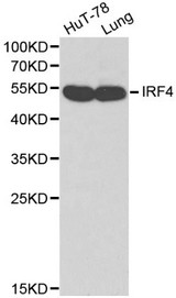 Western blot of IRF4 pAb in extracts from HuT-78 cells and mouse lung tissue.