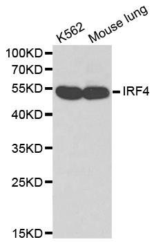 Western blot analysis of extracts of various cell lines, using IRF4 antibody. The secondary antibody used was an HRP Goat Anti-Rabbit IgG (H+L) at 1:10000 dilution. Lysates were loaded 25ug per lane and 3% nonfat dry milk in TBST was used for blocking.