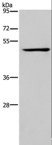 Western blot analysis of Jurkat cell, using IRF4 Polyclonal Antibody at dilution of 1:400.
