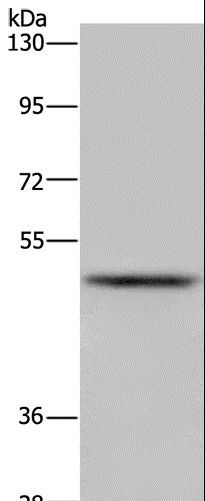 Western blot analysis of Mouse lung tissue, using IRF4 Polyclonal Antibody at dilution of 1:300.