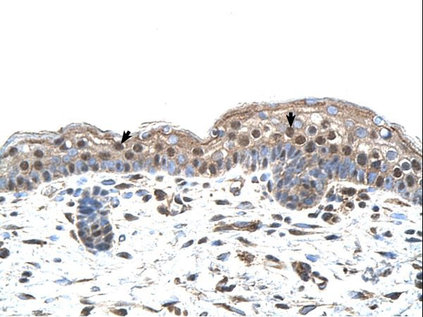 IRF4 antibody LS-C80182 was used in IHC to stain formalin-fixed, paraffin-embedded human skin.  This image was taken for the unconjugated form of this product. Other forms have not been tested.