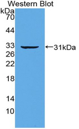 Western blot of recombinant IRF5.