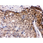 IRF5 antibody IHC-paraffin. IHC(P): Human Mammary Cancer Tissue.