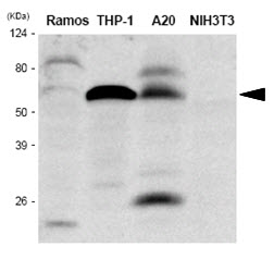 The extracts of Ramos, THP-1, A20 and NIH3T3 were resolved by SDS-PAGE, transferred to PVDF membrane and probed with anti-human IRF5antibody (1:1000). Proteins were visualized using a goat anti-mouse secondary antibody conjugated to HRP and an ECL detection system.