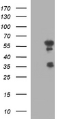 HEK293T cells were transfected with the pCMV6-ENTRY control (Left lane) or pCMV6-ENTRY IRF5 (Right lane) cDNA for 48 hrs and lysed. Equivalent amounts of cell lysates (5 ug per lane) were separated by SDS-PAGE and immunoblotted with anti-IRF5.