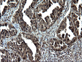 IHC of paraffin-embedded Adenocarcinoma of Human ovary tissue using anti-IRF5 mouse monoclonal antibody. (Heat-induced epitope retrieval by 1 mM EDTA in 10mM Tris, pH8.5, 120°C for 3min).